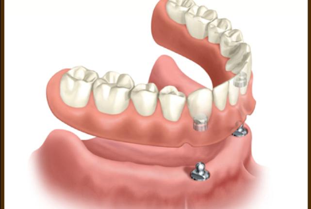 proteza-pe-implant